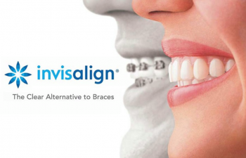 Invisalign - advertising banner